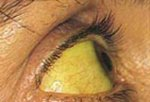 Желтуха (гепатит)