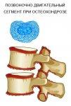 Причины остеохондроза позвоночника.